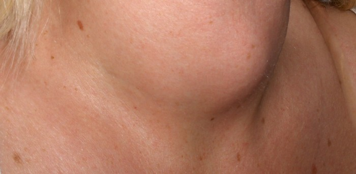 nodule thyroide